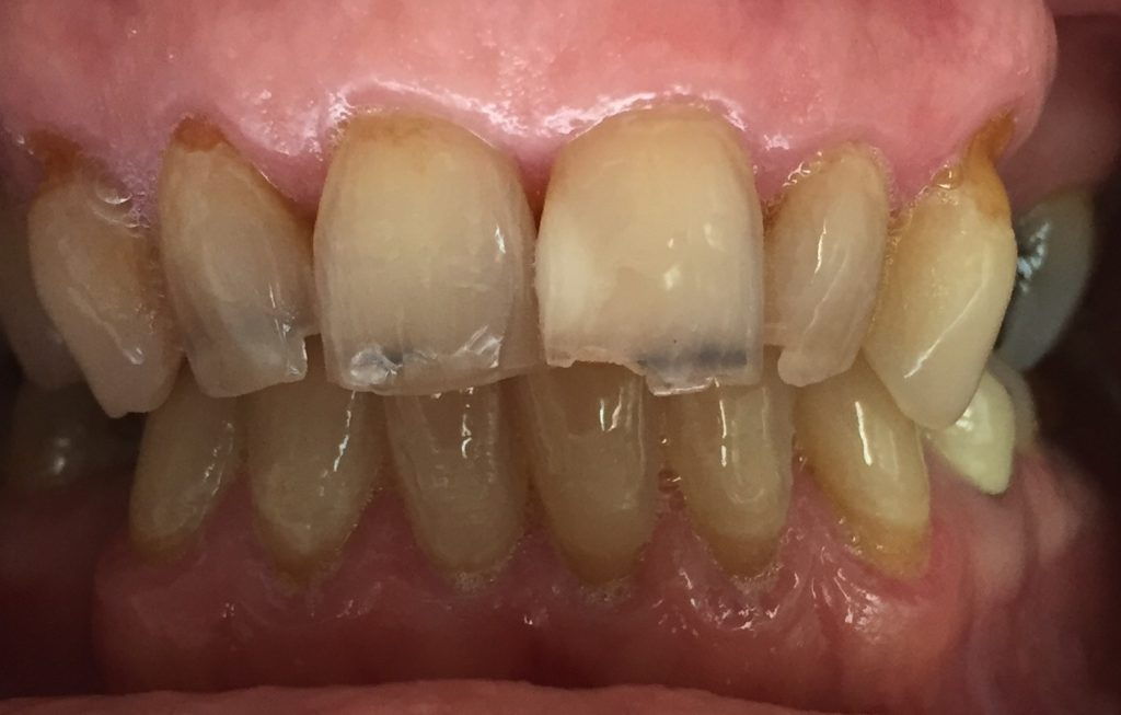What Do You Do about Chipped teeth?