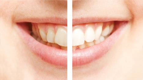 Professional Teeth Whitening vs. Home Remedies