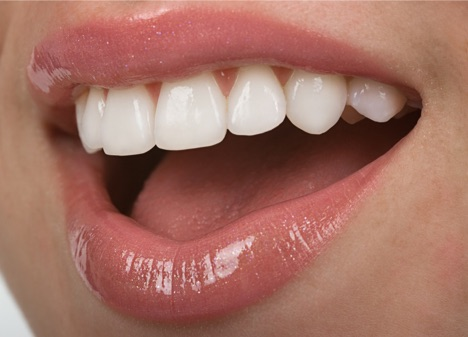 Veneers or Bonding: Which is Right for Me?